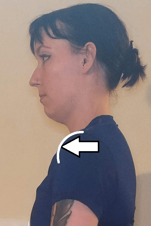 rounded-shoulders.png