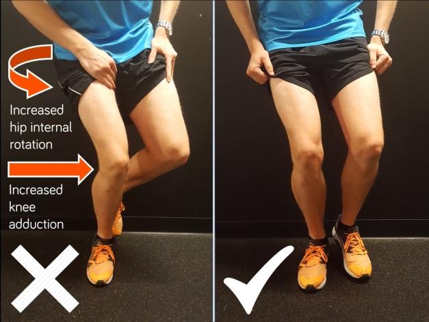 Runners-knee-diagram